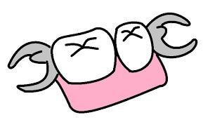 部分入れ歯.jpg